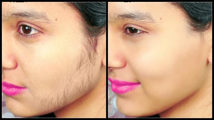 how to remove women facial hair